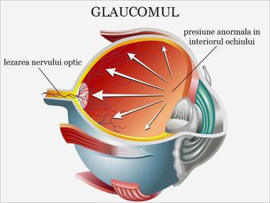 Schema care explica care sunt cauzele glaucomului