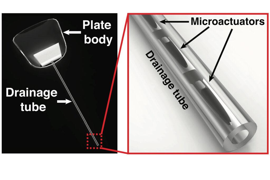 Sistem revolutionar de drenare in cazul care ajuta la tratarea glaucomului cu magneti.